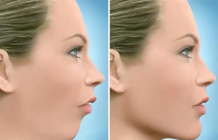 Dr Najjar Chirurgien Maxillo-Facial Chirurgie Mandibule