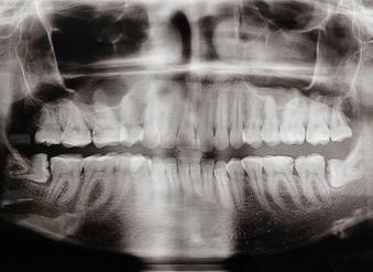 Dr Najjar Chirurgien Maxillo-Facial Dents de sagesses