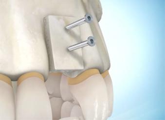Dr Najjar Chirurgien Maxillo-Facial greffe osseuse
