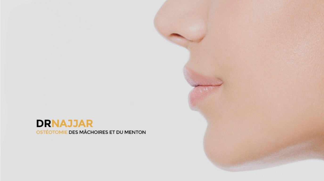 Dr Najjar Chirurgien Maxillo-Facial Ostéotomie